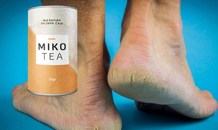 Mikotea od gljiva stopala i noktiju: VIŠE NEMA GLJIVIČNIH INFEKCIJA!
